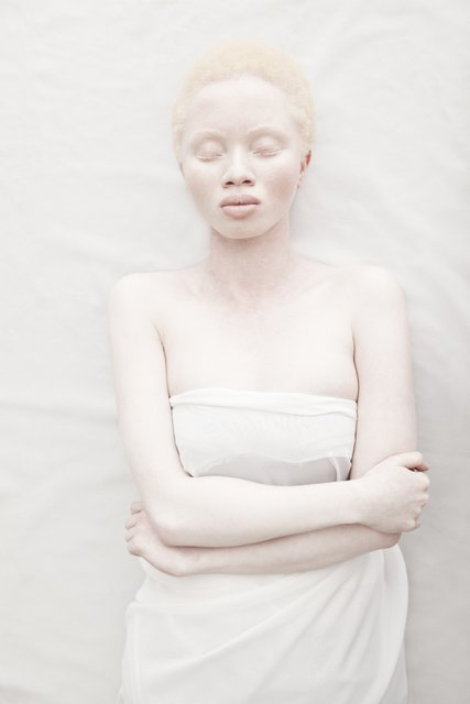 Albus-Albinism-Art-Justin-Dingall-Thanda-Hope-FAB-Magazine (1)