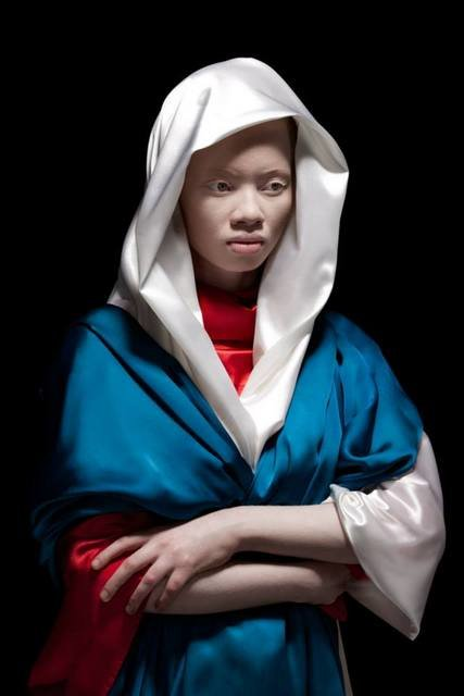 Albus-Albinism-Art-Justin-Dingall-Thanda-Hope-FAB-Magazine (10)