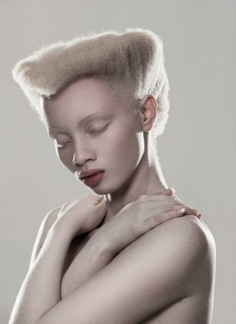 Albus-Albinism-Art-Justin-Dingall-Thanda-Hope-FAB-Magazine (12)