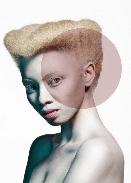 Albus-Albinism-Art-Justin-Dingall-Thanda-Hope-FAB-Magazine (2)