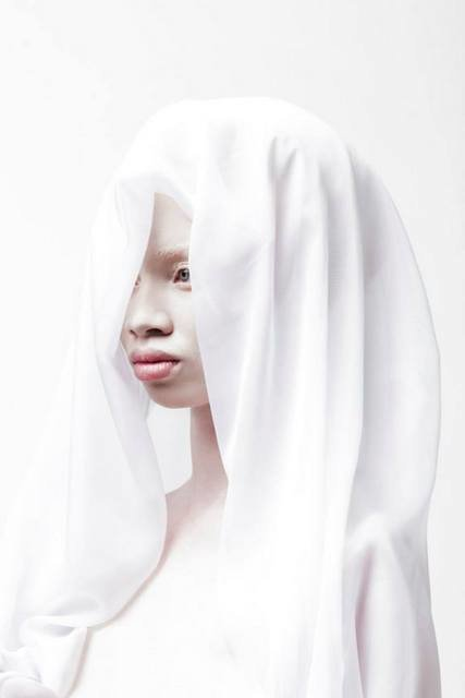 Albus-Albinism-Art-Justin-Dingall-Thanda-Hope-FAB-Magazine (7)