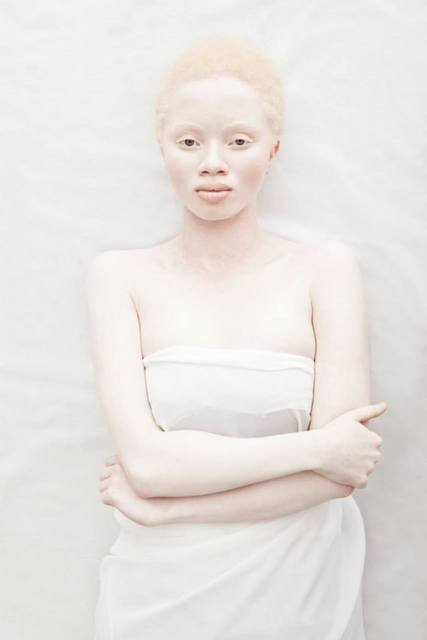 Albus-Albinism-Art-Justin-Dingall-Thanda-Hope-FAB-Magazine (8)