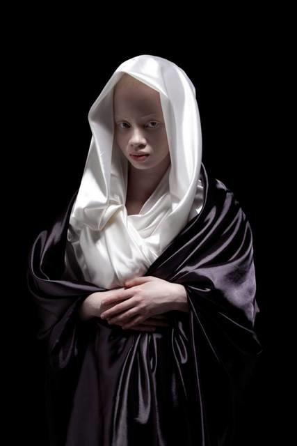 Albus-Albinism-Art-Justin-Dingall-Thanda-Hope-FAB-Magazine (9)
