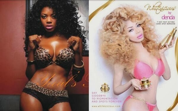 Dencia before and after bleaching