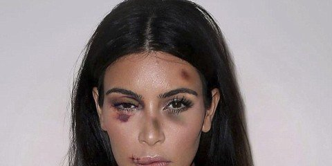 01 Dec 2015  Kim Kardashian  Italian artist Alexsandro Palombo disfigures (in photos) eight international stars to denounce violence against women worldwide.  BYLINE MUST READ : NO CREDIT  *AVAILABLE FOR UK SALE ONLY*  ***UK CLIENTS - PICTURES CONTAINING CHILDREN PLEASE PIXELATE FACE PRIOR TO PUBLICATION ***  **UK CLIENTS MUST CALL PRIOR TO TV OR ONLINE USAGE PLEASE TELEPHONE  +44 208 344 2007